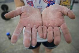 http://buyprogrips.com/wp-content/uploads/how-to-treat-calloused-hands.jpg